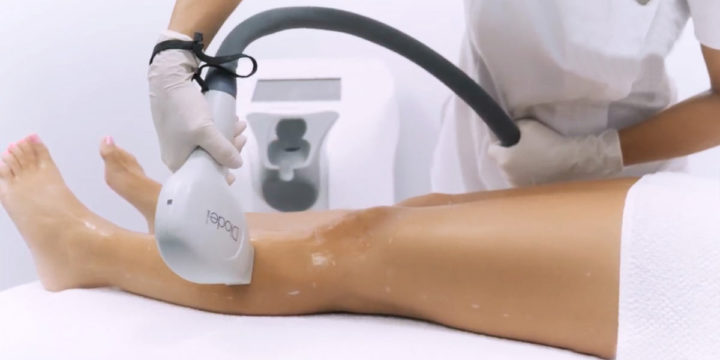 Elysion Laser Hair Removal Technology